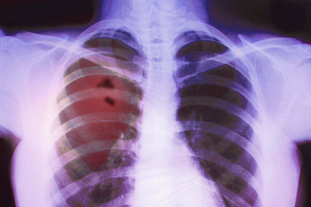Lungenkrankheit durchs Dampfen?